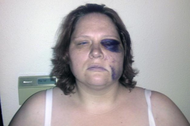 Megan Graham, 36, of Kirkland says she was punched in the face by Federal Way Police officers. She says she did nothing to provoke the beating, but the police say otherwise. (Photo courtesy of Geof Richie)